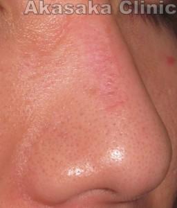 鼻背母斑術後3ヵ月斜