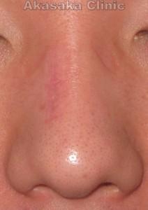 鼻背母斑術後3ヵ月 正面